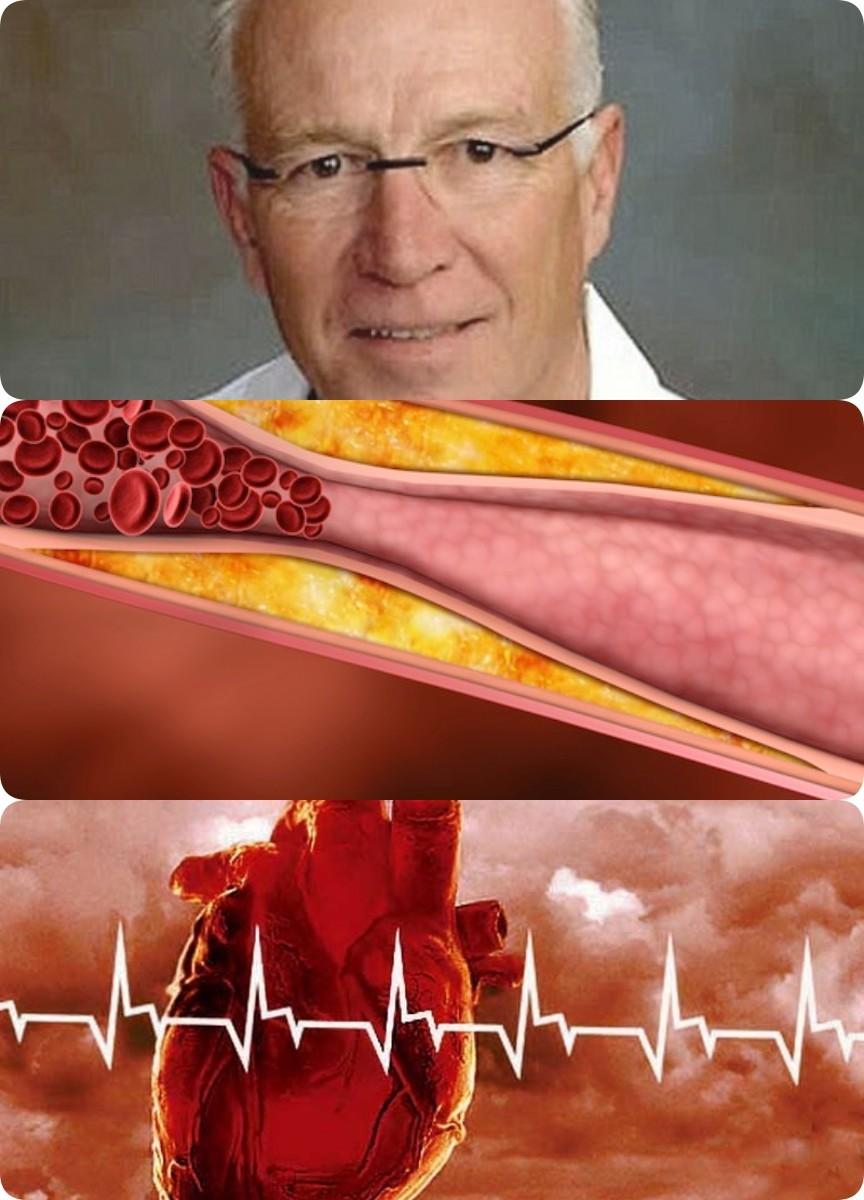 Причина сердечных заболеваний совсем не холестерин. Но что же тогда?
