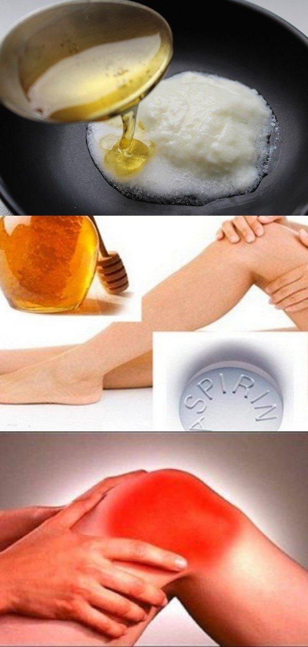 """""""Аспириновый мёд"""" от боли в коленях"""