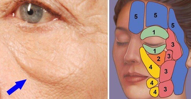 Как убрать суфы на лице: причины появления малярных мешков под глазами