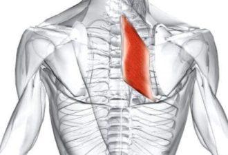 Ромбовидная мышца – возможная причина боли в области лопаток. Как устранить боль