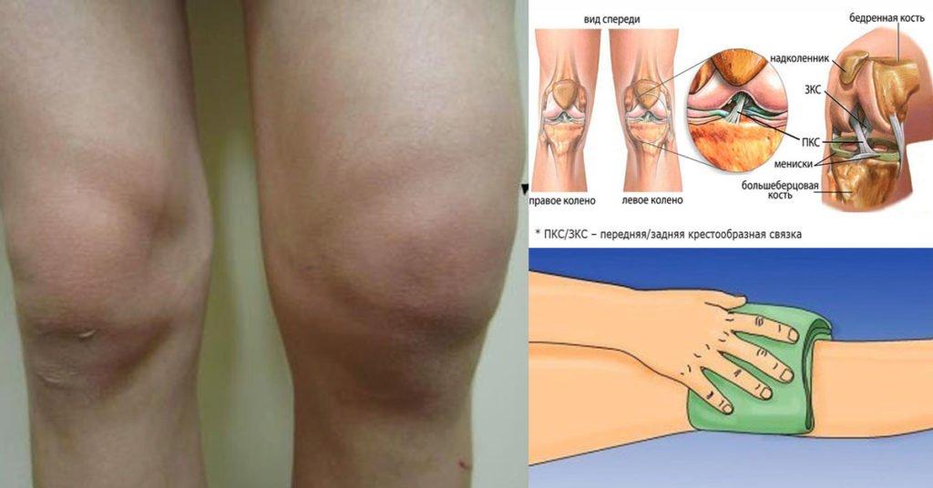 Мне 72 года и это простое средство помогло мне избавиться от отёка и боли в колене!