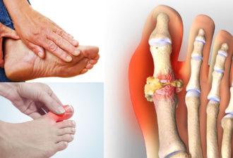 Вот как быстро удалить кристаллы мочевой кислоты, чтобы предотвратить подагру, боль в суставах и камни в почках!