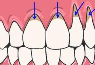 5 супер эффективных средства для устранения оголения шейки зуба и предотвращения потери зубов!
