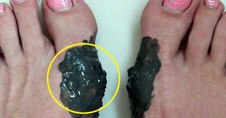 Растет косточка на ноге анатомические изменения причины и симптомы заболевания