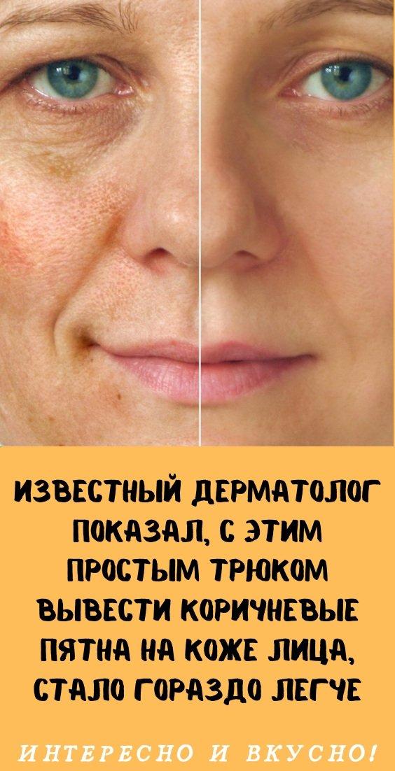 Известный дерматолог показал, с этим простым трюком вывести коричневые пятна на коже лица, стало гораздо легче