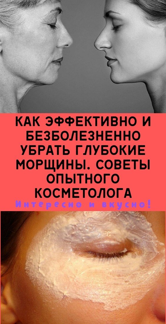 Как эффективно и безболезненно убрать глубокие морщины. Советы опытного косметолога
