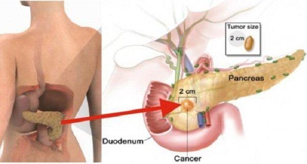 Употребление всего 2-х кусочков этого продукта увеличивает риск рака поджелудочной железы!