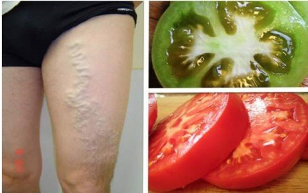 Как вылечить варикозное расширение вен с помощью зеленых и красных помидоров!