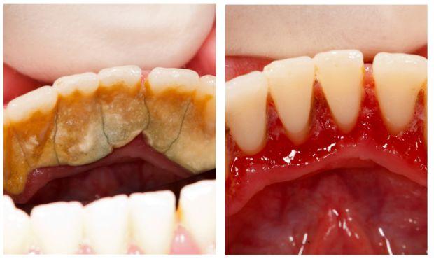 Действенный способ избавления от зубного камня в домашних условиях