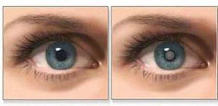 Масло, которое улучшает зрение и лечит катаракту (и как его использовать)