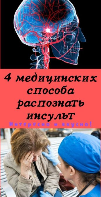 4 медицинских способа распознать инсульт