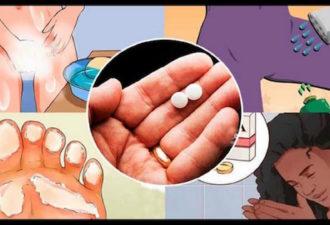 10 трюков с аспирином, которые каждая женщина должна знать. Это изменит вашу жизнь