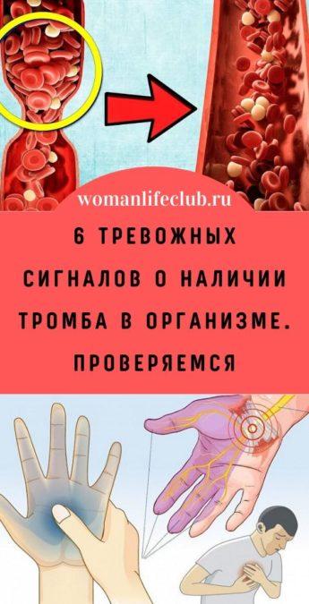 6 тревожных сигналов о наличии тромба в организме. Проверяемся