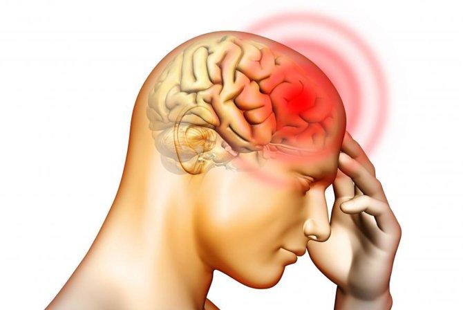 Я и не знала, что у боли в разных частях головы разные причины… Поразительные открытия!