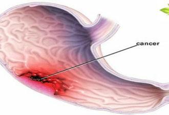 Рак желудка — тихий убийца: наиболее распространенные симптомы (не игнорируйте их)