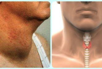 Как быстро избавиться от проблем с щитовидкой! Натуральный и эффективный способ!
