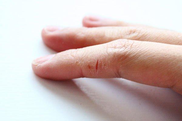 Избавься от шелушение кожи на пальцах рук! 8 народных средств!