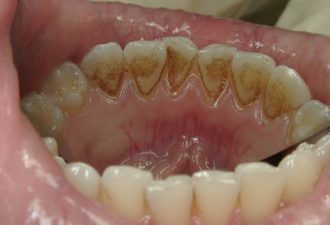 Как очистить зубы от налета и камня в домашних условиях